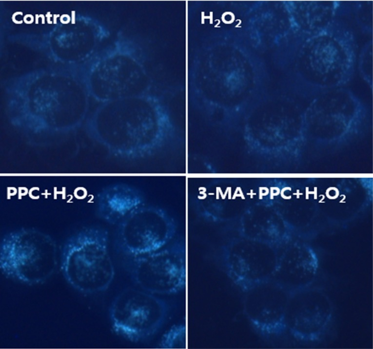 Monodansylcadaverine (MDC) staining of cytoplasmic vacuoles after propofol treatment in human keratinocytes. Significant accumulation of autophagy-specific staining of MDC was observed around the nuclei in PPC/H 2 O 2 group cells.