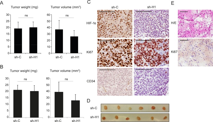 Repressed HIF1A expression does not significantly affect tumor growth in SCLC cell xenografts U-1906 cells, transduced with shRNA against HIF1A (sh-H1) or a non-targeting control (sh-C), were injected subcutaneously into nude mice. ( A , B ) Mean tumor specimen weight and tumor volume, 14 days after injection. A, all tumors ( n = 12) and B, specimens with confirmed tumor growth ( n = 11, see text and Panels in E). Data are presented as mean ± SEM and statistical significance was determined using Student´s t -test. Data is from one of two independent experiments ( n = 6 for each group). ( C ) Sections of formalin-fixed paraffin-embedded xenografts were characterized immunohistochemically for expression of HIF-1α, Ki67 and <t>CD34.</t> ( D ) The corresponding dissected tumors are shown. ( E ) Example of a specimen, devoid of tumor cells, stained with hematoxylin-eosin (H/E) and anti-Ki67 antibody. Scale bars, 100 μm.