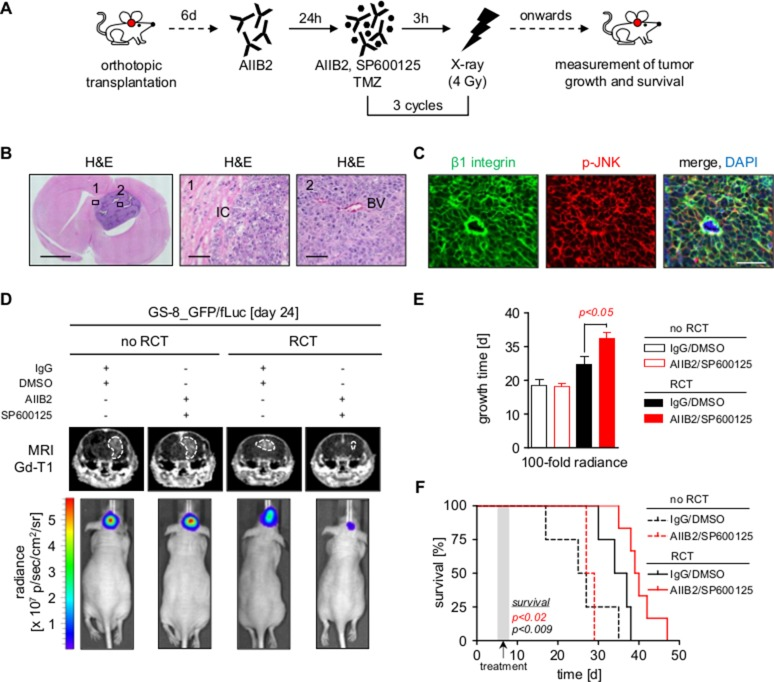 Dual inhibition of β1 integrin and JNK delays tumor growth and prolongs survival in combination with radiochemotherapy ( A ) Treatment scheme of mice bearing tumors of GS-8_GFP/fLuc stem-like cells. ( B ) Left panel shows representative image of a mouse brain with GS-8_GFP/fLuc tumor. Scale bar, 2 mm. Region 1 and 2 corresponding to middle and right panel magnifications show invading tumor cells (IC) and blood vessel (BV) of GS-8_GFP/fLuc tumors, respectively. Scale bar, 100 μm. ( C ) Representative images from GS-8_GFP/fLuc tumors showing β1 integrin (green), phospho-JNK (T183/Y185) (red) or merge with nuclei (DAPI, blue). Scale bar, 100 μm. ( D ) Gadolinium-enhanced (Gd) T1-weighted magnetic resonance images (MRI) from mice bearing GS-8_GFP/fLuc tumors 24 days after transplantation and β1 integrin/JNK inhibition without or in combination with radiochemotherapy (RCT). Dashed lines delineate tumors. Lower images show luminescence analyses of representative GS-8_GFP/fLuc tumors 24 days after transplantation and indicated treatment. ( E ) GS-8_GFP/fLuc tumor growth time to 100 fold radiance after indicated treatment. Data are mean +/− SEM (6 - 8 mice per group, one-way ANOVA). ( F ) Survival of GS-8_GFP/fLuc mice treated as indicated. Kaplan Meier analysis includes 6 mice IgG/DMSO, 8 mice AIIB2/SP600125, 6 mice IgG/DMSO+RCT, 6 mice AIIB2/SP600125+RCT (two-sided log rank test, p