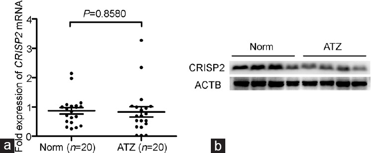 The expression of CRISP2 in the ejaculated spermatozoa between asthenoteratozoospermic patients and normozoospermic volunteers. ( a ) The expression level of CRISP2 mRNA is detected by qRT-PCR in the ejaculated spermatozoa between ATZ patients and normozoospermic volunteers (Student's t -test, data are shown as mean ± s.e.m.). ( b ) The CRISP2 protein expression is detected by Western blot analysis in 24 (12 Norm vs 12 ATZ) randomly selected ejaculated spermatozoa. CRISP2: cysteine-rich secretory protein 2; Norm: normozoospermic control group; ATZ: asthenoteratozoospermic patients group; s.e.m.: standard error of the mean.