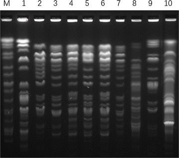Pulsed-field gel electrophoresis (PFGE) of <t>XbaI-digested</t> <t>DNA</t> of E. cloacae isolates. Lane M PFGE marker, Salmonella ser. Braenderup H9812; lanes 1 – 10 representative NDM-1-producing E. cloacae