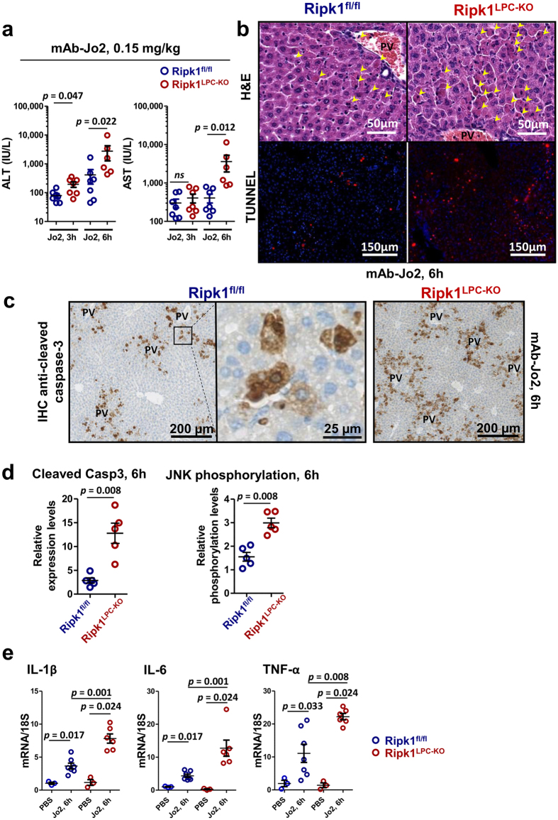 RIPK1 deficiency sensitizes mice to Fas-mediated liver injuries. ( a ) Levels of serum ALT and AST, 3 and 6 h after mAb-Jo2 injection in Ripk1 fl/fl and Ripk1 LPC-KO mice (n = 6–7). ( b ) Pictures of liver tissue sections, stained by H E (upper panels) or analysed by TUNEL (in red) and DAPI (in blue) immunofluorescence (lower panels) issued from Ripk1 fl/fl and Ripk1 LPC-KO mice, 6 h after mAb-Jo2 injection. Yellow arrows show necrotic areas, PV: portal vein. ( c ) Immunostaining of cleaved caspase-3 in the livers of Ripk1 fl/fl and Ripk1 LPC-KO mice, 6 h after mAb-Jo2 injection. ( d ) Mean levels of cleaved caspase-3 (left panel) and of JNK phosphorylation status (right panel) in the livers of Ripk1 fl/fl (n = 5) and Ripk1 LPC-KO (n = 5) mice, collected 6 h after mAb-Jo2 injection (see corresponding Western blots in Supplementary Fig. S1 ). ( e ) Levels of hepatic IL-1β, IL-6 and TNF-α transcripts in Ripk1 fl/fl or Ripk1 LPC-KO mice, 6 h after PBS (n = 3 mice) or mAb-Jo2 injection (n = 6–7 mice). For all graphs, each circle represents an individual.