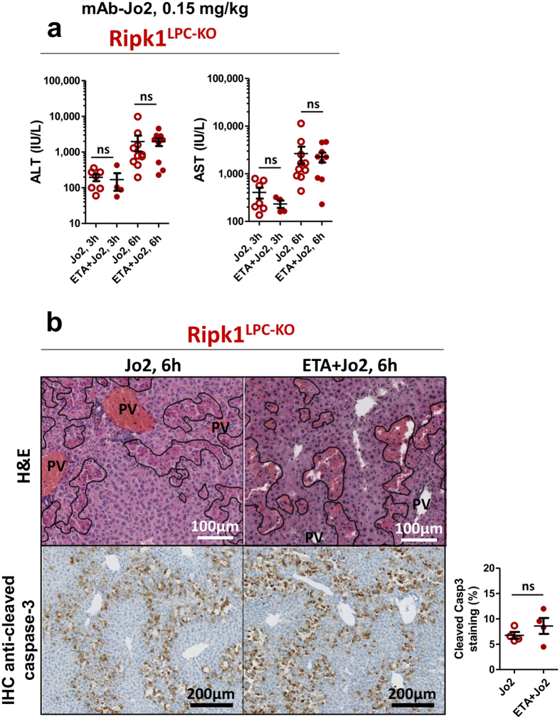 Fas-mediated liver injury in Ripk1 LPC-KO mice is independent of TNF-α. ( a ) Levels of serum ALT and AST (n = 4–10) in Ripk1 LPC-KO mice after 3 or 6 h mAb-Jo2 injection with a possible pre-treatment with ETA (ns: non-significant). Each circle or dot represent an individual. ( b ) Pictures of liver tissue sections, stained by H E (upper panels) or analysed by IHC for cleaved caspase-3 (lower panels), issued from Ripk1 LPC-KO mice, 6 h after mAb-Jo2 injection with a possible pre-treatment with ETA. Signal quantification of cleaved caspase-3 (lower right panel).