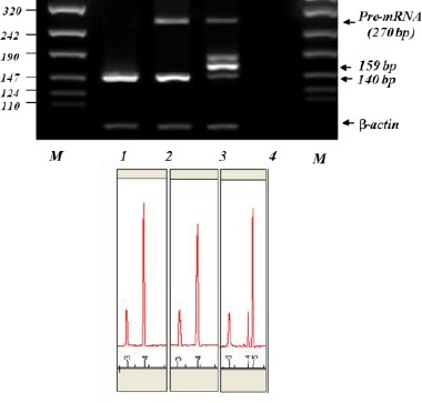 RT-PCR analysis of the EGFP assay constructs. Lane 1, 2 and 3 correspond to RT-PCR analysis on pEGFP C1, pEGFP C1+ I wt and pEGFP C1+ I 1-110 , respectively. Lane M corresponds to molecular marker VIII (Roche). Lower panel illustrates the capillary electrophoresis of the corresponding lanes