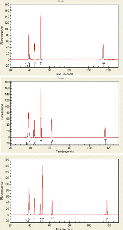 "Analysis of RT-PCR products by capillary electro-phoresis following transient transfection of EGFP plasmids into K562 cells. A) pEGFP C1. B) pEGFP C1 + I wt , C) pEGFP C1+ I 1-110 . Peaks ""a"" and ""f"" correspond to lower (15 bp) and upper (1500 bp) internal markers in capillary electrophoresis. Peak ""b"" corresponds to β-actin. Peak ""c"" corresponds the correctly spliced product (140 bp). Peak ""d"" in panel C corresponds to the aberrantly spliced product (159 bp). Percentages (19.6% and 80.4%) in panel C correspond to correctly and aberrantly product, respectively. Peak ""e"" in panel B and C indicate to pre mRNA in pEGFP C1 + I wt and pEGFP C1+ I 1-110 (270 bp)"