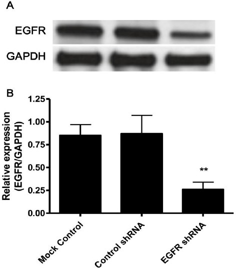 EGFR is specifically down-regulated by EGFR shRNA lentivirus. Weri-Rb-1 cells were mock infected (mock control) or infected with lentivirus bearing negative control shRNA (control shRNA) or EGFR shRNA (EGFR shRNA) at 5 MOI for 48 hr. Then cells were lysed and EGFR expression was determined by Western blot. (A) Representative result is shown. (B) Grayscale analysis. Data shown are mean ± SD of three independent experiments. **, P