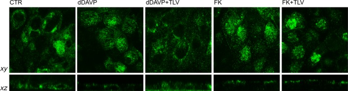 Effect of tolvaptan on AQP2 localization in MDCK‐hAQP2 cells. MDCK cells were grown on filters and were exposed to different treatments. AQP2 was localized by confocal microscopy. Stimulation with dDAVP caused AQP2 translocation to the apical plasma membrane. In contrast, tolvaptan prevented dDAVP‐induced AQP2 redistribution (dDAVP+TLV). Apparently tolvaptan did not prevent the re‐localization of the bulk of AQP2 to the apical membrane in response to FK.