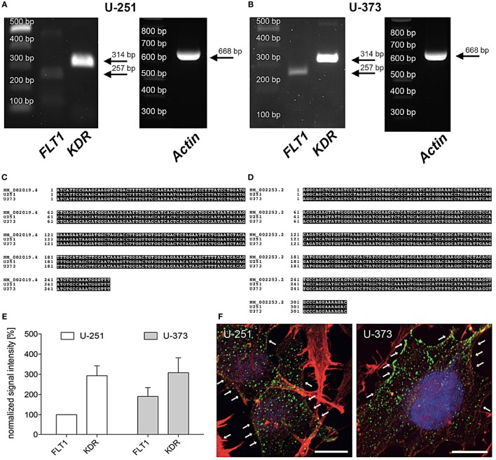 Expression of vascular endothelial growth factor (VEGF)-R2 ( KDR ) in U-251 and U-373 glioblastoma cell lines. (A,B) VEGF-R1 ( FLT 1) as well as VEGF-R2 ( KDR) are expressed in both cell lines U-251 (A) and U-373 (B) . β -Actin was used as housekeeping gene. PCR products were isolated and confirmed by DNA sequencing. (C,D) Sequence of amplified PCR product for FLT1 (C) and KDR (D) matches their specific database entries ( FLT1 – NM_002019.4; KDR – NM_002253.2) and were proven to be unique in human glioblastoma cell lines U-251 as well as in U-373 by comparison with a database (Blast 2.2, U.S. National Centre for Biotechnology Information, Bethesda, MD, USA) (E) . Semi-quantitative analysis of gene expression normalized to β -Actin and compared to the expression of U-251-FLT (100%). Data are shown as mean ± SEM. n = 3. (F) Both glioblastoma multiforme cell lines express VEGF-R2 (green dots, arrows) in the cytoplasm as well as along the cell membrane. Counterstaining of the actin cytoskeleton is given in red as well as cell nuclei staining with DAPI in blue. Scale bars: 10 µm.