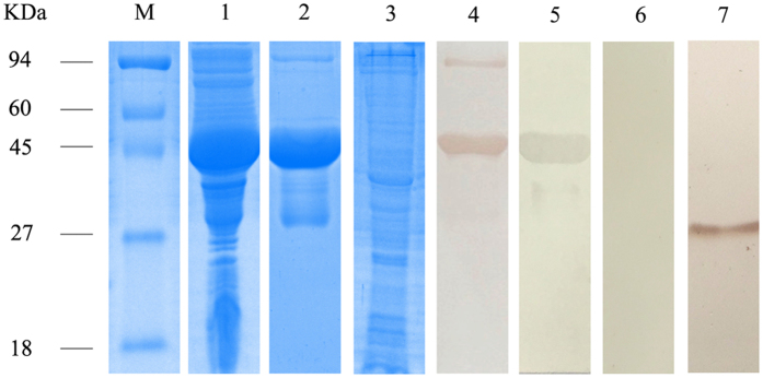 SDS-PAGE and western blotting of S. scabiei PTK. Lanes: M, protein molecular weight markers (in kDa); 1, non-purified recombinant PTK (inclusion bodies from <t>Escherichia</t> coli <t>BL21</t> (DE3) expressing the protein); 2, purified recombinant PTK; 3, total crude proteins from S. scabiei ; 4, purified recombinant SsPTK detected in serum (diluted 1:100 with 0.01 M PBS) from a rabbit naturally infested with S. scabiei (experimental group); 5, purified recombinant SsPTK detected in rabbit anti-PTK serum (diluted 1:100 with 0.01 M PBS; positive control); 6, purified recombinant SsPTK detected in naïve rabbit serum (diluted 1:100 with 0.01 M PBS; negative control); 7, total crude proteins detected with rabbit anti-PTK serum (diluted 1:100 with 0.01 M PBS). Samples derived from the same experiment and gels/blots were processed in parallel. Cropping was used and full-length blots/gels are presented in supplementary information Figure S1 .