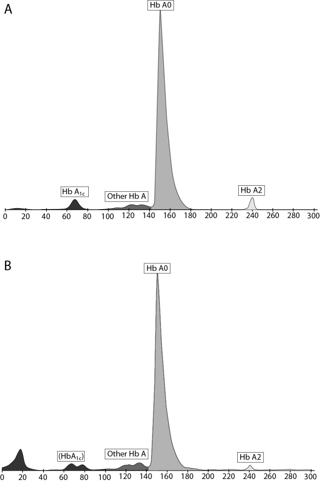 Haemoglobin A 1c analysis by Capillarys 2 Flex Piercing. (A) Normal control. (B) HbH samples - <t>HbA1c</t> cannot be measured (in parenthesis) due to overlapping with the HbBart's fraction.