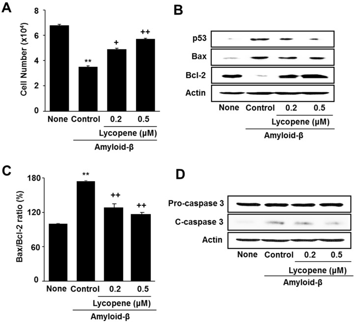 Effect of lycopene on cell viability and apoptotic indices in amyloid-β-stimulated cells. The cells were pretreated with lycopene for 1 h and then stimulated with amyloid-β (20 μM) for another 24 h. ( A ) Viable cell numbers was determined by the Trypan Blue exclusion test; ( B ) Levels of p53, Bax, Bcl-2, caspase-3, and actin were determined by western blot analysis; ( C ) The ratio of Bax/Bcl-2 was determined by protein band densities of Bax and Bcl-2; ( D ) Levels of pro- and cleaved-caspase-3 were assessed by western blot analysis. Actin was used as a loading control. The value of None (without any stimulation or treatment) was set as 100%. Data are expressed as the mean ± S.E. of three independent experiments. ** p