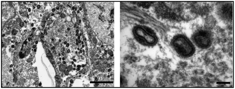 Electron microscopy of specimen V563 showing large numbers of typical orthopoxvirus particles at different magnification. Scale bars correspond to 2 micrometers ( left ) and 200 nm ( right ).