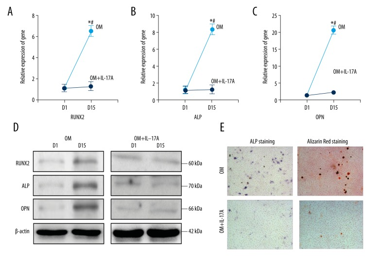IL-17A inhibited osteogenic differentiation of BMSCs; ( A–C ) The osteoblastic markers were detected by qRT-PCR method; ( D ) The osteoblastic markers were detected by Western blotting; ( E ) ALP staining and Alizarin Red staining were used to assess osteogenic differentiation level of BMSCs; OM – osteogenic differentiation medium; OM+IL-17A – osteogenic differentiation medium with IL-17A; D1 – 1 day; D15 – 15 days; * compared with before induction of differentiation, P value