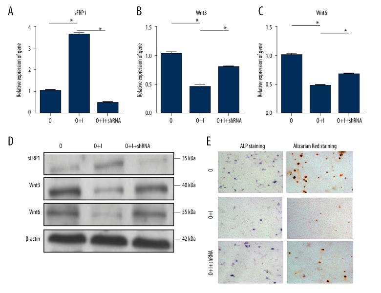 Knockdown of the expression of sFRP1 abolished the inhibition effect of IL-17A in osteogenic differentiation of BMSCs; ( A–C ) The Wnt signaling pathway inhibitor (sFRP1) and modulators of Wnt signaling pathway (Wnt3, Wnt6) were detected by the qRT-PCR method; ( D ) The Wnt signaling pathway inhibitor (sFRP1) and modulators of Wnt signaling pathway (Wnt3, Wnt6) were detected by Western blotting; ( E ) The ALP staining and Alizarin Red staining were used to analyze osteogenic differentiation level of BMSCs; O – osteogenic differentiation medium; O+I – osteogenic differentiation medium with IL-17A; O+I+shRNA – osteogenic differentiation medium with IL-17A+ sFRP1-shRNA; * P value