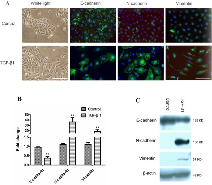EMT of human immortalized bronchial epithelial cells induced by TGF-β1 M-BE cells were treated with human recombinant TGF-β1 at a final concentration of 5 ng/ml for 6 days, with cells cultured without TGF-β1 as control. A. A phenotypic change in M-BE from epithelial to spindle-shaped morphology was observed after TGF-β1 treatment, which was photographed at 100× magnification using white light microscopy (left panel, scale bar = 100 μm). Immunofluorescence staining showed the expression status of three EMT markers (left to right panels: E-cadherin, N-cadherin, Vimentin) in M-BE cells induced by TGF-β1. FITC (green) was used for respective target proteins; 4,6-diamidino-2-phenylindole (DAPI) was used to visualize nuclei. All of the fluorescence images were captured at 400× magnification using fluorescence microscopy (scale bar = 25 μm). B. qRT-PCR analysis for mRNA levels of three EMT markers in TGF-β1 treated cells. Y-axis indicates the relative expression level (Fold Change, FC) of genes. Means and standard deviations (SD, error bars) are shown. Unpaired Student's t-test (two sided) was performed for significance estimate. **M-BE cells treated with TGF-β1vs control, P