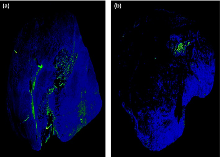 Immunofluorescent staining of SCCVII tumors at 60 min after intravenous pimonidazole administration. The blue areas represent tumors, and the green areas represent pimonidazole‐positive cells. (a) Control (sodium hyaluronate injection 15 min before pimonidazole). (b) H 2 O 2 with sodium hyaluronate injection 15 min before pimonidazole administration.