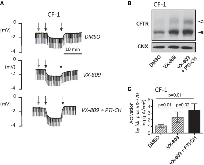 Amplifying ΔI1234_R1239‐CFTR expression enhances functional rescue effect of VX‐809 + VX‐770 in primary nasal cultures Ussing chamber responses (symmetrical chloride concentrations) exhibited by nasal epithelial cultures obtained from CF‐1 after 24‐h pre‐treatment with vehicle (DMSO), VX‐809, or VX‐809 + PTI‐CH. Responses to VX‐770 (1 μM, gray arrow), forskolin (10 μM, thick black arrow), and CFTRinh‐172 (5 μM, thin black arrow) were tested. ΔI1234_R1239‐CFTR protein expression in nasal cultures from CF‐1 after 24‐h pre‐treatment with vehicle (DMSO), VX‐809 (3 μM), or VX‐809 + PTI‐CH (3 μM and 1 μM, respectively). Band B, black arrowhead; band C, white arrowhead; calnexin was used as a loading control. Summary of forskolin‐ and VX‐770‐dependent responses in Ussing chamber studies of nasal cultures from subject (CF‐1). Bars represent mean and SEM of six biological replicates (different nasal cell seedings). The combination of VX‐809 (3 μM) + PTI‐CH (1 μM; black bar) significantly increased forskolin and VX‐770 activated Ieq relative to VX‐809 alone (hatched bars corresponding to primary nasal culture data shown previously in Fig 6 E). Statistical significance of comparisons assessed using paired t ‐tests.