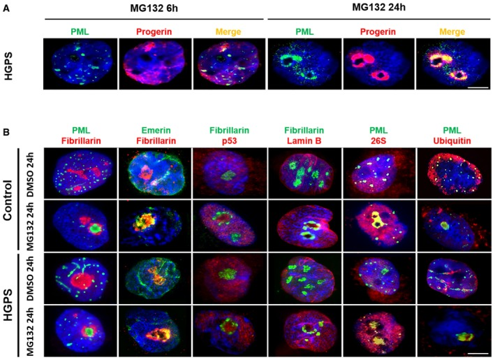Nucleolar translocation of progerin upon MG 132 treatment Subnuclear distribution of progerin (red) and PML (green) after MG132 treatment of HGPS fibroblasts. Cells cultured with 5 μM MG132 for 24 h show staining of progerin and PML in intranuclear foci. MG132 induces the translocation of PML (green), emerin (green), p53 (red), 26S proteasome subunit (red), and ubiquitin (red) into nucleoli of HGPS and control fibroblasts cultured in the presence of 5 μM MG132 for 24 h (relative to DMSO‐treated cells: control). Nucleoli were labeled with fibrillarin antibodies and nuclei with DAPI (blue). The merged images are shown. Data information: Data in (A,B) are representative of six independent experiments. The experiments were performed on fibroblasts of HGPS patients and healthy subjects matched for age and passage. Scale bars, 5 μm.