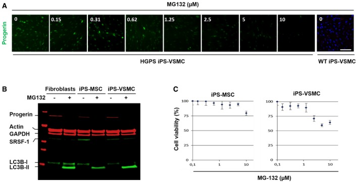 MG 132 reduces progerin and SRSF ‐1 levels in patient iPS ‐Derived MSC and VSMC Immunofluorescence images of HGPS‐derived iPS‐VSMC and WT‐derived iPS‐VSMC cultured with DMEM medium containing either indicated MG132 concentrations (0.15, 0.31, 0.62, 1.25, 2.5, 5, and 10 μM) or DMSO (0) for 24 h and stained for progerin (green). Scale bar, 40 μm. ( n = 3). MG132 treatment resulted in a decrease of progerin levels. A representative Western blotting experiment in whole lysates showing progerin, actin, GAPDH, SRSF‐1, LC3B‐I, and LC3B‐II expression in 5 μM MG132‐treated HGPS fibroblasts (+), 2.5 μM MG132‐treated HGPS iPS‐MSC (+), and 1.2 μM MG132‐treated HGPS iPS‐VSMC (+) for 24 h, relative to DMSO‐treated cells (−). ( n = 4). HGPS‐derived iPS‐MSC and iPS‐VSMC viability was measured at 24 h post‐treatment with MG132 at the indicated concentrations using CellTiter‐Glo Luminescent Cell Viability Assay. Results are reported as viability percentage of MG132‐treated cells relative to DMSO‐treated cells. Results are expressed as mean ± SEM ( n = 4). Source data are available online for this figure.