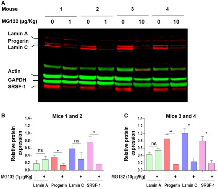 MG 132 reduces progerin and SRSF ‐1 levels in Lmna G609G /G609G mice muscle Western blotting evaluation of lamin A/C, progerin, actin, GAPDH, and SRSF‐1 in gastrocnemius muscle lysate of Lmna G609G/G609G mice treated with 1 μg/kg (mice 1 and 2) or 10 μg/kg (mice 3 and 4) MG132. The results are shown as four successive pairs (left: DMSO‐treated (0 μg/kg) and right: MG132‐treated (1 or 10 μg/kg) muscles, each corresponding to a single mouse). Lamin A‐, progerin‐, lamin C‐, and SRSF‐1‐specific bands, corresponding to DMSO‐treated left muscle (−) and 1 μg/kg MG132‐treated right muscle (+), were quantified by ImageJ software and their expression levels were normalized to GAPDH values. Lamin A‐, progerin‐, lamin C‐, and SRSF‐1‐specific bands, corresponding to DMSO‐treated left muscle (−) and 10 μg/kg MG132‐treated right muscle (+), were quantified by ImageJ software, and their expression levels were normalized to GAPDH values. Data information: Results are expressed as mean ± SEM, n = 5, Student's t ‐test, * P