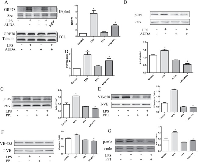 AUDA inhibited LPS-induced hyperpermeability by regulating GRP78 mediated SRC activation ( A ) LPS induced GRP78/Src interaction and Src activation was restrained by AUDA treatment; ( B ) LPS induced permeability increase was reduced by Src inhibitor PP1; ( C ) PP1 decreased LPS induced phosphorylation of VE-cadherin and MLC. ( D ) PP1 attenuated LPS induced permeability increase. ( E – G ) LPS induced VE cadherin and MLC phosphorylation was suppressed by PP1 treatment. Each tests was repeated for at least three times. Data are expressed as means ± SEM. * P
