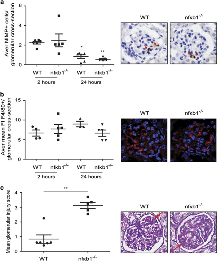 NF- κ B1-deficient mice have more severe glomerular injury after NTS-induced glomerulonephritis. Average number of neutrophils (NIMP+) per glomerular cross-section in WT and nfκb1 −/− renal tissues 2 and 24 h post-NTS injection and representative NIMP IHP pictures at 2 h showing neutrophil infiltration (red arrows) in a glomeruli ( a ). Average mean fluorescence intensity of F4/80+ staining per glomerular cross-section in WT and nfκb1 −/− renal tissues 2 and 24 h post-NTS injection and representative F4/80 IHP pictures at 24 h showing macrophage positive staining in a glomeruli ( b ). Glomerular injury score in WT and nfκb1 −/− mice 24 h post-NTS injection and representative PAS pictures showing areas of glomerular thrombosis (red arrows) in a glomeruli ( c ). N =6, unpaired t -test, * P ⩽0.05 or ** P ⩽0.01