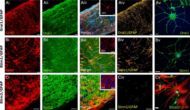Expression of Orai/Stim in optic nerve astrocytes. Double immunofluorescence labelling for Orai1 ( a , green ), Stim1 ( b , green ) and Stim2 ( c , green ), with GFAP to identify astrocytes ( a – c , red ), in WT optic nerve sections ( ai – iv , bi– iv, ci – iv ) and explant cultures ( av, bv, cv ). Confocal micrographs illustrate single channels ( ai, aii, bi, bii, ci, cii ) and merged cannels ( aiii, biii, ciii ). Expression of Orai1 and Stim1 is localized to astrocyte processes, whereas astrocytes were immunonegative for Stim2, as demonstrated by the colocalization channels, illustrating voxels in which green and red channels are of equal intensity and appear yellow ( aiv, biv, civ ). Astrocytes in explant cultures are immunopositive for Orai1 ( av ) and Stim1 ( bv ), but are immunonegative for Stim2 ( cv ). No immunostaining was observed in negative controls that were pre-incubated in blocking peptides for Orai1 ( inset , aiii ), Stim1 ( inset , biii ) and Stim2 ( inset , ciii ). Nuclei are stained with Hoechst blue. Scale bars a, b 10 µm, c 20 μm