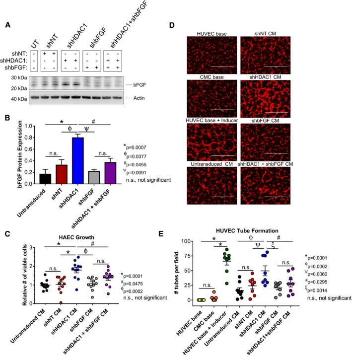 <t>Basic</t> <t>fibroblast</t> <t>growth</t> <t>factor</t> ( bFGF) knockdown inhibits paracrine signaling‐mediated activation of endothelial cell proliferation and tube assembly in HDAC 1‐depleted CMC s. A, Immunoblots evaluating the expression of bFGF in total protein extracts derived from sh RNA ‐transduced CMC s (n=4). B, Densitometric analysis of bFGF immunoblots (expression relative to β‐actin). Values are mean± SEM (n=4). Western blot data were log base 10 (y=log 10 y) transformed and analyzed by unpaired, 1‐way ANOVA . P values were calculated using the post hoc Holm–Sidak multiple comparison test. C, HAEC growth was assessed following their propagation in CM from all sh RNA ‐transduced CMC groups (untransduced, sh NT , sh HDAC 1, shb FGF , and sh HDAC 1+shb FGF ). Values are mean± SEM (n=11). Growth data were analyzed by 1‐way ANOVA and P values determined using the post hoc Dunnett multiple comparison test. D, Representative fluorescent microscopy images (scale=1000 μm) and (E) graph enumerating HUVEC tube formation in response to incubation with CM from untransduced, sh NT , sh HDAC 1, shb FGF , or sh HDAC 1+shb FGF transduced CMC s. HUVEC base (−Ctrl), CMC base (−Ctrl), and HUVEC base+inducer (low serum growth supplement [ LSGS ]; +Ctrl) controls are included. Values are mean± SEM (n=8 for control and experimental groups). Tube formation data were analyzed using 1‐way ANOVA and P values determined using the post hoc Dunnett multiple comparison test. All experiments utilized 1:3 sh RNA viral titer dilutions. CM indicates conditioned medium; CMC , cardiac mesenchymal stromal cell; HAEC , <t>human</t> aortic endothelial cell; HDAC 1, histone deacetylase 1; HUVEC , human umbilical vein endothelial cell; shb FGF , short hairpin RNA basic fibroblast growth factor; sh HDAC 1, short hairpin RNA ‐histone deacetylase 1; sh NT , short hairpin RNA nontarget; UT , untransduced.