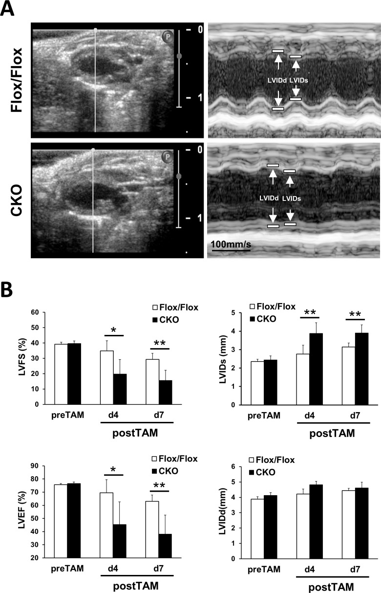 Echocardiographic measurements of HSPB7 CKO and control mice. (A) Representative two-dimensional and M-mode echocardiographic images of the HSPB7 CKO and control hearts. (B) Echocardiographic analysis in the HSPB7 CKO and control mice before and at 4 days (d4) and 7 days (d7) after tamoxifen administration. Left ventricular ejection fraction (LVEF), left ventricular fractional shortening (LVFS), left ventricular end-systolic internal diameter (LVIDs), and left ventricular end-diastolic internal diameter (LVIDd). Data are means ± SD; n = 5 per group. *, P