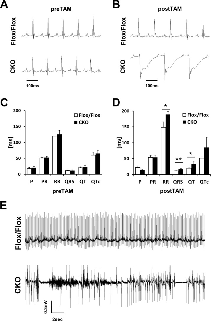 Electrical conduction is impaired in HSPB7 CKO hearts. (A and B) Annotated ECG curve of the HSPB7 CKO and control animals before (A) and 7 days after (B) the first tamoxifen injection. (C and D) Quantification of the ECG changes in HSPB7 CKO and control animals before (C) and 7 days after (D) the first tamoxifen administration. N = 5 per group. Data are presented as means ± SD. *, P