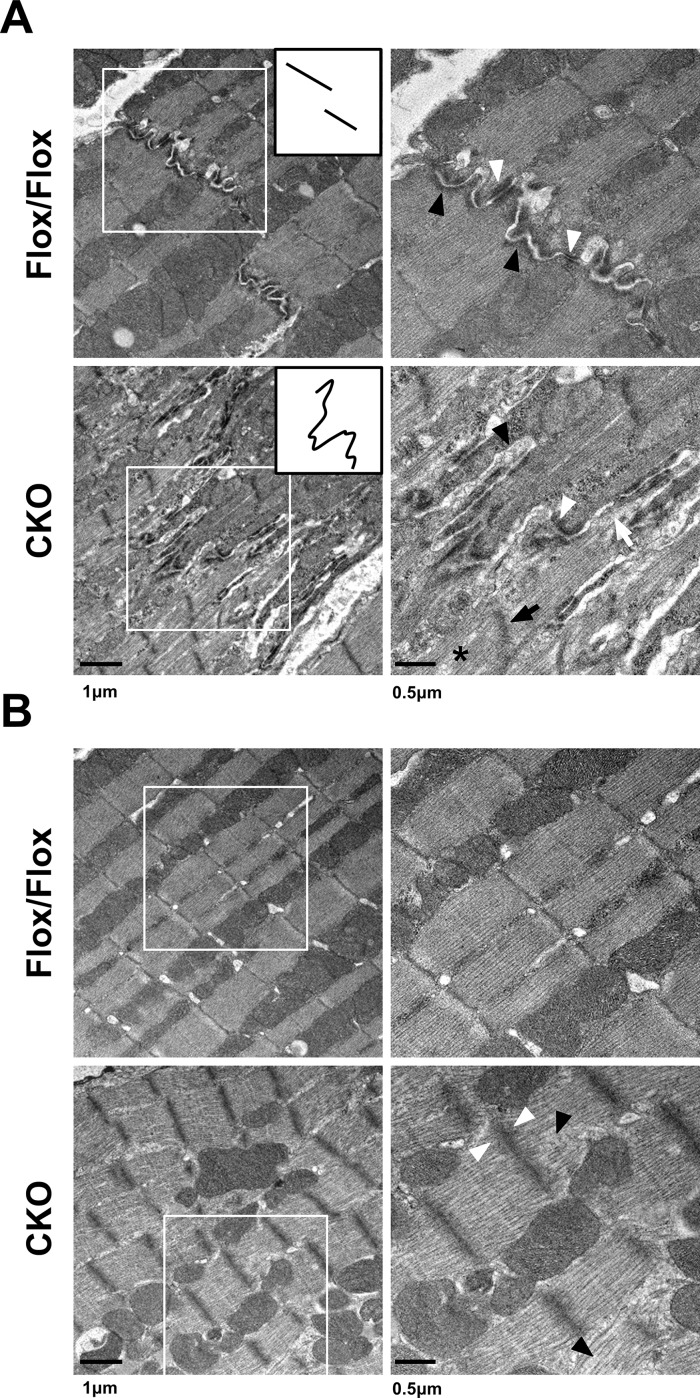 Ultrastructural study of control and HSPB7 CKO hearts. Transmission electron micrographs (TEMs) of ventricular myocardium from HSPB7 CKO and control mice at d7 after tamoxifen administration. Right panels are higher-magnification views of the boxed areas in the left panels. (A) Normal intercalated disc structures were visible in the control hearts. The inset provides a simplistic representation of the morphology of the intercalated discs. Higher-magnification images showed abnormal adherens junctions (black arrowheads) and desmosomes (white arrowheads) with widened gaps of the intercalated discs in HSPB7 mutant hearts. Abnormal Z-line (black arrow), filament disruption (asterisk), and detachment of myofibrils at the intercalated disc (white arrow) were also observed in the CKO mice. (B) The ultrastructure of the sarcomeres at the center part of the cardiomyocyte was slightly distorted. Higher-magnification images showed (right panel) loose actin filaments (black arrowhead) and wider, less dense Z-lines (white arrowhead) compared with the controls. n = 3 per group. Scale bar: 250 nm.