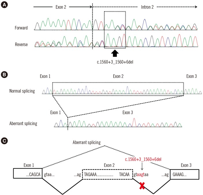 Novel splice site variant in the LEMD3 gene. (A) Sequencing pattern of LEMD3 shows overlapping peaks due to a heterozygous variant in intron 2 (c.1560+3_1560+6del; arrow). (B) Cloning of reverse transcription (RT)-PCR products reveals two clones: a normal clone and an abnormal clone without exon 2. (C) Schematic illustration of aberrant splicing due to the heterozygous 4-bp deletion.
