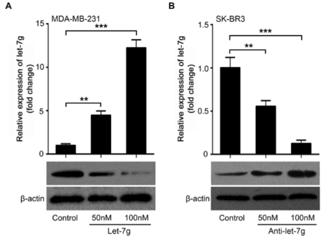 Let-7g inhibits FOXC2 expression in breast cancer cells. (A) The levels of FOXC2 protein were examined in MDA-MB-231 cells with the treatment of let-7g by Western blot analysis. The successful transfection of let-7g was confirmed by qRT-PCR analysis. (B) The levels of FOXC2 protein were determined in SK-BR3 cells with anti-let-7g treatment using Western blot. The successful transfection of anti-let-7g was accessed by qRT-PCR. (Statistical differences: ** P