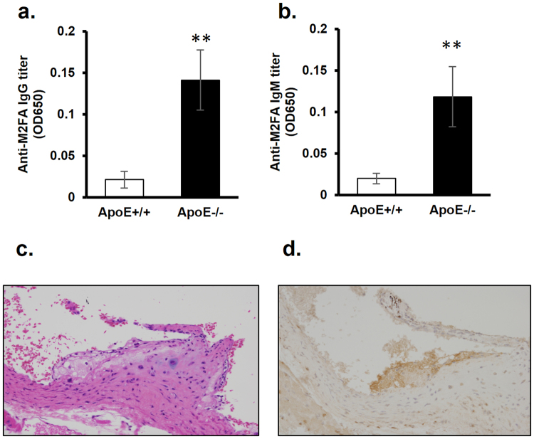 Serum anti-M2FA IgG and IgM antibody levels in wild-type and ApoE −/− mice and immunohistochemical detection of M2FA-epitopes in heart valve of ApoE −/− mice. The anti-M2FA IgG ( a ) and IgM ( b ) antibody levels showed significant differences between wild-type and ApoE −/− mice with the M2FA-6ACA-BSA ELISAs (**p