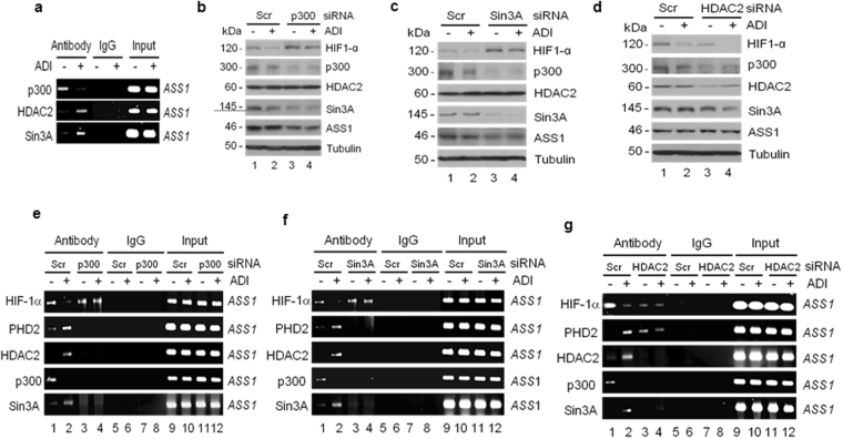 Effects of ADI on the regulation of HIF-1α stability by p300, HDAC2, and Sin3A. ( a ) ChIP assay of ASS1 promoter associations of p300, HDAC2 and Sin3A in A2058 cells treated with ADI for 15 min. ( b to d ) Effects of p300, Sin3A, and HDAC2 knockdown by siRNA as indicated on the expression of other proteins in the presence and absence of ADI (0.5 μg/ml, 1 hr). ( e to g ) ChIP assays of effects of p300, Sin3A, and HDAC2 knockdown on the ASS1 promoter associations of HIF1α, PHD2, HDAC2, p300, and Sin3A as indicated Cells were transfected with given siRNA as specified for 24 hr followed by ADI treatment (0.5 μg/ml) for 15 min.