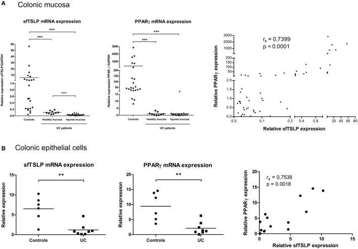 sfTSLP expression is decreased in ulcerative colitis (UC) patients and correlates with peroxisome proliferator activated receptor-gamma (PPARγ) expression level. (A) Colonic mucosa were obtained from control subjects ( n = 22) or patients with UC (healthy mucosa, n = 9; injured mucosa, n = 21). Quantitative expression of PPARγ and sfTSLP mRNA were assessed by qPCR and normalized to GAPDH level. Transcript levels of sfTSLP in colonic mucosa from both controls and UC patients were correlated with PPARγ mRNA level. P -value was determined by the non-parametric Spearman test. (B) Colonic epithelial cells (CEC) were purified from resected colon specimens of control subjects ( n = 6) or untreated patients with UC ( n = 8). Quantitative expression of PPARγ and sfTSLP mRNA were assessed by qPCR and normalized to GAPDH level. Transcript levels of sfTSLP in CEC from both controls and UC patients were correlated with PPARγ mRNA level. P -value was determined by the non-parametric Spearman test. Horizontal bar indicates the mean value. ** P