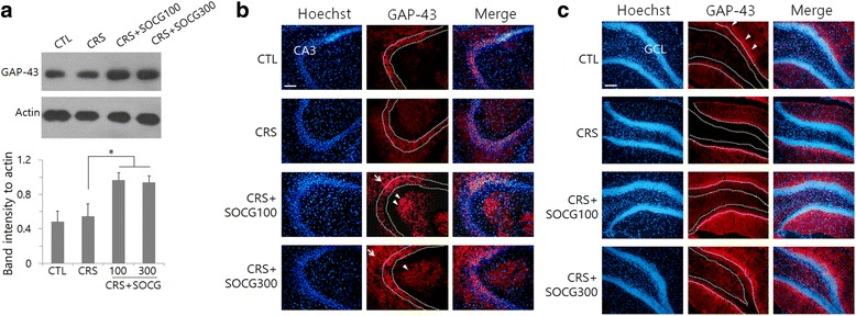 Regulation of <t>GAP-43</t> levels in the hippocampus by SOCG treatment in CRS animals. a Western blot analysis of GAP-43 in the hippocampal tissue. Images in the upper panel show the representatives from 4 independent experiments, and quantitation of protein band intensity relative to actin control are shown in the lower panel. * P