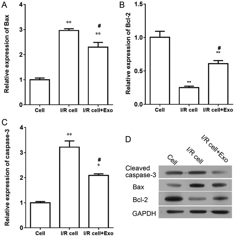 Influence of endothelial exosomes on the expression of Bax, Bcl-2, caspase-3 in I/R SH-SY5Y cells. Effects of exosomes derived from the endothelial cell model of ischemia and reperfusion on expression of Bax, Bcl-2, caspase-3 in I/R SH-SY5Y nerve cells. The mRNA expressions of (A) Bax, (B) Bcl-2 and (C) cleaved caspase-3. (D) Western blot analysis of Bax, Bcl-2 and caspase-3. * P