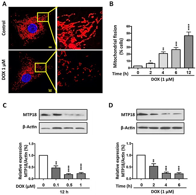 Doxorubicin exposure induces mitochondrial fission and down-regulates the MTP18 expression in a dose- and time- dependent manner (A) and (B) AGS cells were stimulated with 1μmol/L doxorubicin (DOX) at indicated time points and mitochondrial morphology was analyzed. (A) Shows mitochondrial morphology of control and after 6hr of DOX exposure. (B) Shows percentage of cells undergone mitochondrial fission upon DOX exposure. (C) and (D) Analysis of mitochondrial protein 18 (MTP18) expression. AGS cells were stimulated with the indicated doses of DOX and harvested at 12h (C) , and cells were stimulated with 1μmol/L DOX and then harvested at the indicated time (D) for immunoblotting. (C) and (D) Upper panels show mitochondrial protein 18 (MTP18) expression on DOX exposure. (C) and (D) Lower panels show densitometry analysis. β-actin served as a loading control. The densitometry data were expressed as the mean±SEM of three independent experiments. * P