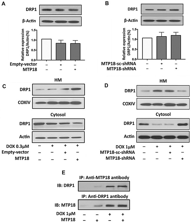 MTP18 promotes doxorubicin-induced DRP1 accumulation in mitochondria (A) and (B) Analysis of dynamic-related protein 1 (DRP1) expression. Immunoblot shows DRP1 expression in whole cell lysate upon modulation of mitochondrial protein 18 (MTP18) expression. Modulation of MTP18 does not significantly affect the expression level of DRP1 ( upper panel ). β-actin served as a loading control. The densitometry data were expressed as the mean±SEM of three independent experiments ( lower panel ). (C) and (D) Analysis of DRP1 expression in mitochondria and cytosolic fraction. Immunoblot shows DRP1 expression in AGS cells. C shows an increase in DRP1 accumulation in mitochondria upon enforced expression of MTP18. D shows a reduction in DRP1 accumulation when MTP18 was knocked down. HM= mitochondria-enriched heavy membranes. Cytochrome c oxidase (COXIV) served as a loading control for HM and β-actin served as a loading control for whole cell lysate and cytosolic fraction. (E) MTP18 binds to endogenous DRP1. Stable cell line of AGS infected with MTP18 were treated with 1μmol/L DOX. Since doxorubicin (DOX) exposure could induce a time-dependent downregulation of MTP18, the cells were harvested within 1h of DOX treatment to capture the association of MTP18 and DRP1 timely. The association between MTP18 and DRP1 was analyzed by immunoprecipitation (IP) followed by immunoblot (IB). Figures presented are the representative of at least three independent experiments.