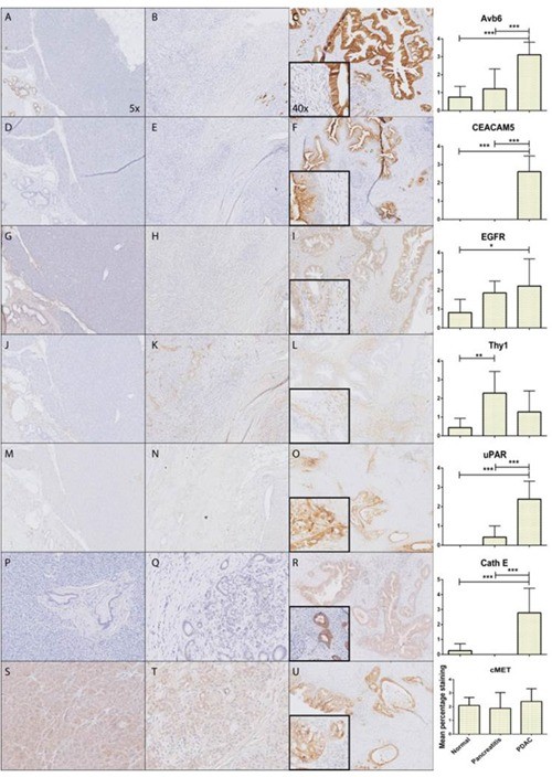 Expression patterns of investigated markers Representative images of immunohistochemically staining patterns in PDAC of all molecular markers; αvβ6 (A-C) , CEACAM5 (D-F) , EGFR (G-I) , Thy1 (J-L) , uPAR (M-O) , CathE (P-R) , cMET (S-U) showing respectively from left to right normal pancreatic tissue, CP, PDAC and graphical representation of mean percentage staining on all the tissue slides (*: p