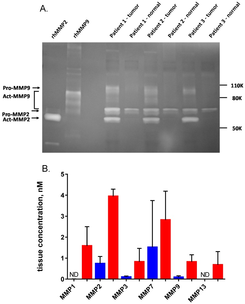 Quantification of MMPs in non-malignant breast tissue and tumor homogenates. (A) Homogenates from three representative human breast cancer samples and paired normal tissue, selected from the 25 patients in Fig. 7 were analyzed on a 10% gelatin zymogram. Recombinant active MMP2 and <t>MMP9</t> were used as standards (2 ng per lane). (B) ELISA quantification of six MMPs in five representative human breast cancer samples (red) and paired normal tissue (blue), including the three pairs shown in panel A. Error bars are standard deviations. ND = not detectable.