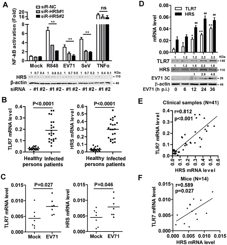 TLR7 expression correlates with HRS expression during EV71 infection. ( A ) Stable HEK293T/TLR7/NF-κB reporter cells were transfected with siR-NC, siR-HRS#1 and siR-HRS#2, treated with R848 or TNFα, and infected with EV71 or SeV. NF-κB activities were determined by luciferase activity assays. The HRS and β-actin proteins expressed in the treated cells were detected by Western blotting. The indicated band intensity represents as fold changes to internal control by using Image J software analysis. Results were expressed as fold induction relative to control. ns, non-significant; *, P