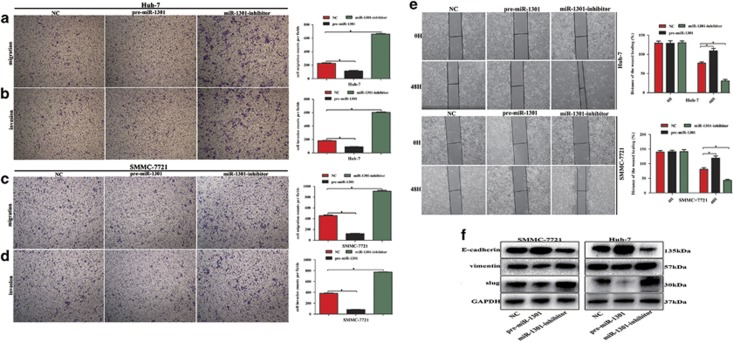 miR-1301 inhibits migration, invasion, and EMT in HCC cells. HCC SMMC-7721 and Huh-7 cells were transfected with LV3-has-miR-1301-pre-microRNA (pre-miR-1301) and LV3-has-miR-1301-sponge inhibitor (miR-1301 inhibitor) lentiviral constructs. An LV3 scrambled lentiviral construct (miR-NC) was used as a control. ( a – d ) Transwell assays were performed to determine cell migration and invasion and ( e ) wound healing assays corroborated these results. ( f ) Western blotting was used to examine the levels of EMT-related protein. Cell migration and invasion capability were quantified as cell numbers. All experiments were performed three times, and data are represented as mean±S.D. values. * P