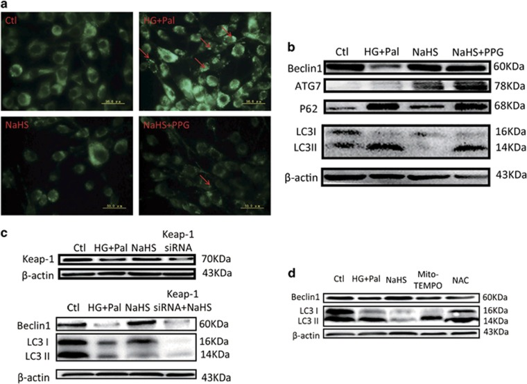 The effects of H 2 S on autophagy are attributed to <t>Keap-1.</t> H9C2 cells were treated with HG+Pal, HG+Pal+NaHS, HG+Pal+NaHS+PPG (10 nM, an irreversible competitive CSE inhibitor), HG+Pal+Mito-TEMPO (2 μ M, an inhibitor of mitochondrial ROS), HG+Pal+NAC (100 μ M, an inhibitor of ROS) and HG+Pal+NaHS+Keap-1 <t>siRNA</t> for 48 h. ( a ) The autophagosome was detected using an MDC test in H9C2 cells (green). Red arrows indicate autophagosome accumulation. ( b ) The expression of P62, ATG7, Beclin1 and LC3 II/I was detected by western blotting. ( c ) The effect of Keap-1 siRNA on autophagy was detected by western blotting. ( d ) The expression of Beclin1 and the ratio of LC3 II to LC3 I were detected by western blotting