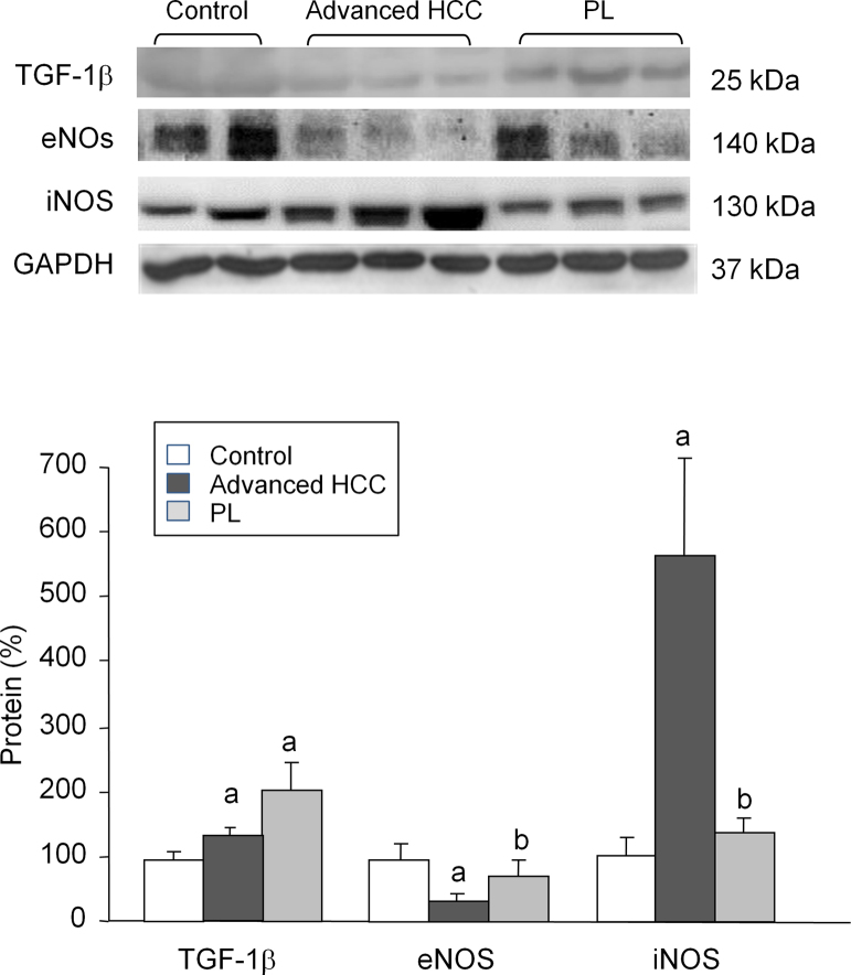 Western blot analysis of TGF-1β, eNOS, and iNOS. Protein from liver extracts was separated by sodium dodecylsulfate-polyacrylamide gel electrophoresis followed by immunoblotting. (A) Representative images. (B) Densitometric quantification. Values are expressed as means ± SD ( n = 5). a p