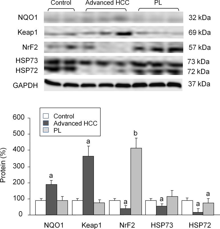 Western blot analysis of NQO1, Keap1, Nrf2, HP73 and HP72. Protein from liver extracts was separated by sodium dodecylsulfate-polyacrylamide gel electrophoresis followed by immunoblotting. (A) Representative images. (B) Densitometric quantification. Values are expressed as means ± SD ( n = 5). a p