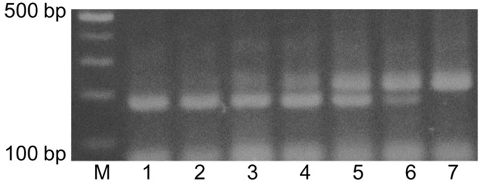 Agarose gel electrophoresis of DNA amplified from genomic DNA extracts of the mixtures of Korean native honey (KNH) and European honey (EH) in duplex PCR with the KNH-specific primers, C6-F and C5-R, and the EH-specific primers, M2-F and M2-R.