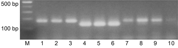 Agarose gel electrophoresis of DNA amplified from genomic DNA extracts of ten Korean native honey (KNH) products in duplex PCR with the KNH- specific primers, C6-F and C5-R and the European honey-specific primers, M5-F and M5-R.
