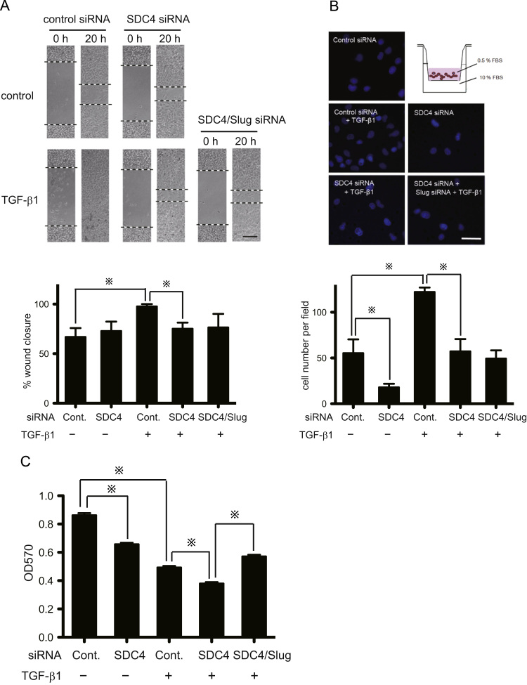 <t>SDC4</t> enhances TGF-β1 stimulated cellular restitution, chemotaxis and proliferation. A, Scratched restitution assay. Cells were seeded in 24-well culture plates at 2×10 4 cells/well. Forty-eight hours after transfection with indicated <t>siRNA,</t> a scratch was made using 200-μl micropipette tip. Upper: 0 and 20 h after wounding. Black dotted lines indicate the wound edge. Lower: Percentage (%) change in migration as determined by comparing the difference in wound width ( n =3). Each bar represents means ±SEM; ※, p